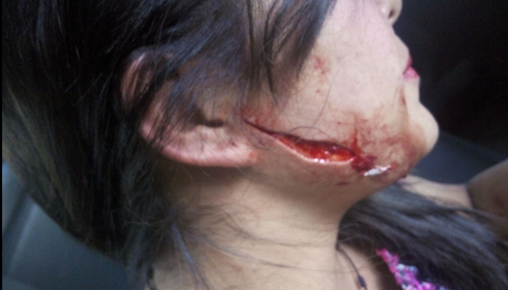 cortan el rostro