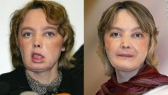 140724160837-frenach-face-transplant-horizontal-large-gallery