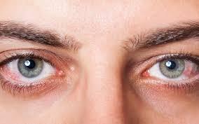 ¿Síndrome del ojo seco? Aquí te decimos todo