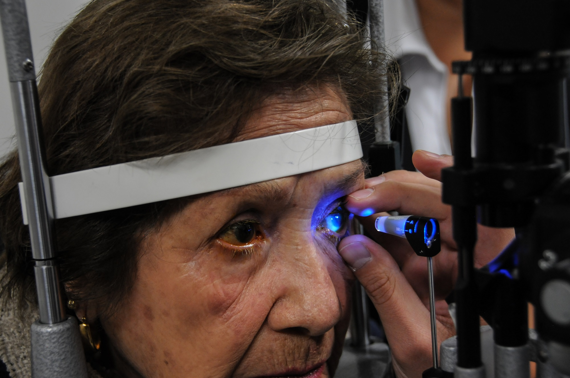 Brinda Salud más de 17 mil servicios gratuitos por glaucoma